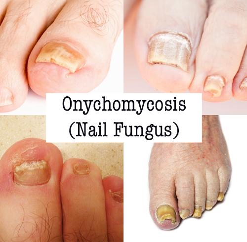 onychomycosis_0